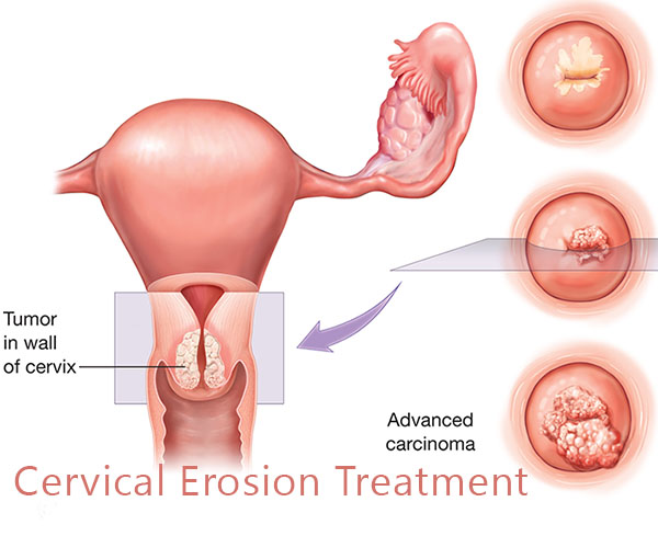Cervical Erosion | Cervical Ectropion, Cervical Prolems treatment, Cervical problem Doctors, Zhongba Hospital, Hospital, Women Health, Health, Female Urologist, Urologist