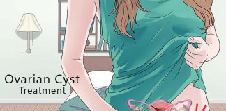 Ovarian Cyst, Cyst Treatment, Cyst Problem, Cyst Symptoms, Vaginal Cyst Treatment, Vaginal Cyst Causes, Vaginal Cyst Symptoms