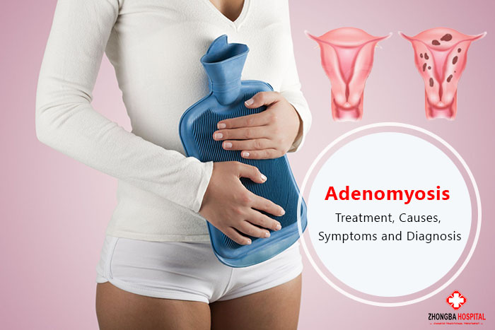 Adenomyosis Treatment