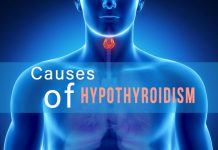 Causes of Hypothyroidism | Hypothyroidism Treatment