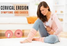 Cervical Erosion Symptoms