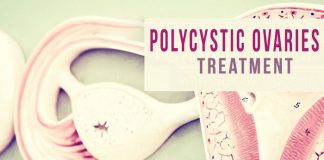 Polycystic Ovaries Treatment in Lahore