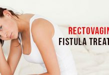 Rectovaginal Fistula Treatment, casuses of rectovaginal fistula, symptoms of rectovaginal Fistula, rectovaginal fistula treatment in lahore, rectovaginal fistula anticiotics, rectovaginal fistula medication, fistula repair surgery, fistula signs, fistula symptoms, fistula after childbirth, bladder fistula symptoms, passing gas through fistula
