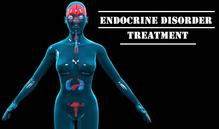 Endocrine disorders, Endocrine disorders treatment,Endocrine disorders symptoms, Endocrine disorders causes, How to treat Endocrine disorders, Endocrine cancer, Endocrine gland, Endocrine therapy, adrenal gland disorder, Endocrine treatment, Endocrine symptoms, Endocrine causes, how to cure Endocrine