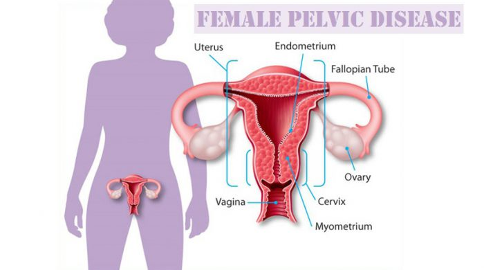 Female Pelvic Disease, Female Pelvic Disease treatment, Female Pelvic Disease treatment in lahore, PID Treatment, pelvic infalmmatory disease treatment, antibiotics for pid, pelvic bacterial infection, pelvic infection symptoms, pelvic inflammatory disease diagnoses, Female Pelvic Disease casuses, Female Pelvic Disease symptoms