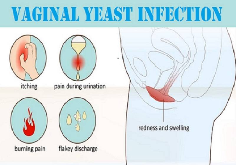 Is sex painful for men during yeast infections
