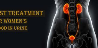 Hematuria treatment in Lahore,Blood in urine treatment in Lahore
